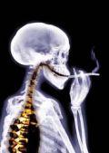 radiografia de pessoa fumando